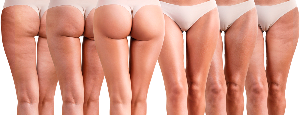 cellulite-beautycare-losone